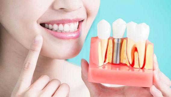 Имплантация 1 зуба у девушки