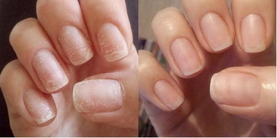 Состояние ногтей после гель-лака - две картины для сравнения до и после